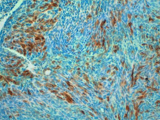 Immunohistology for CD20. Immunohistology showing positivity for CD20 20X magnification