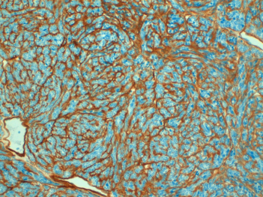 Immunohistology for collagen IV. Immunohistology showing positivity with a strong intercellular deposition of collagen IV 20× magnification