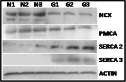 Expression of Ca2+ extrusion and storage systems are altered in GLC cells. Western blot analyses of Ca2+ extrusion and storage systems in NLC cells (n=3 cell lines) and GLC cells (n=3 cell lines). Protein lysates were examined for differential expression of the calcium extrusion components, PMCA, NCX and the SERCA storage pump. Overall, PMCA-1 and PMCA-4 expression is down regulated in GLC cells when compared to NLC cells, a similar pattern is also observed for NCX-1 and NCX-3. Expression of SERCA2 and SERCA3 is significantly upregulated in GLC cells compared to NLC cells. n=3 for NLC and GLC cells. Actin is used as a loading control for this experiment.