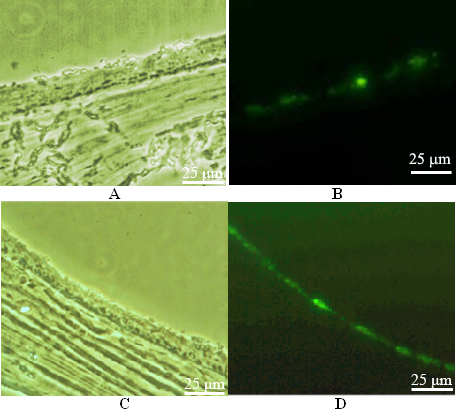 Cell transfection detected by fluorescence microscope. A: The image of the frozen section of rat eyeball wall in the control group under a microscope. Moderate green fluorescence was observed in the retinal region close to the vitrea bulbus 4 days after blank vector transfection. B: The image under a fluorescent microscope. Green fluorescence was seen in the retinal region. C: The image of the frozen section of rat eyeball wall in the gene interference group under a microscope. Moderate green fluorescence was seen in the retinal region close to the vitrea bulbus 4 days after recombinant vector transfection. D: The image under a fluorescent microscope. Green fluorescence was seen in the retinal region.
