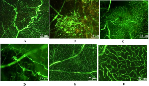Retina preparation by fluorescein isothiocyanate-dextran heart perfusion. A: The image of rat retinal angiography in the positive control group under a fluorescent microscope. Tortuous and thick abnormal new vessels were seen. B: The image of rat retinal angiography in the positive control group under fluorescent microscope. Fluorescent leakage of new vessel mass was seen. C: The image of rat retinal angiography in the gene interference group under a fluorescent microscope. Vessels were distributed in a disorganized manner. D: The image of rat retinal angiography in the gene interference group under a fluorescent microscope. Tortuous and thick new vessels were found. E: The image of rat retinal angiography in the gene interference group under a fluorescent microscope. Two layers of retinal vessels in normal distribution. F: The image of rat retinal angiography in the gene interference group under a fluorescent microscope. Deep vessels were normally arranged as a net.