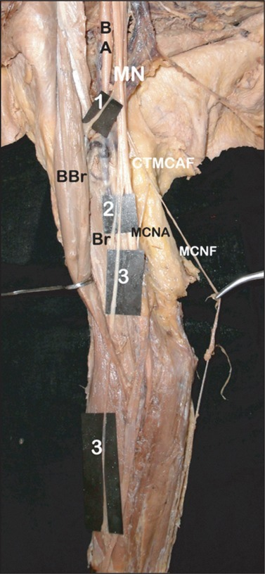 Photograph showing the variant branches of median nerve on the right side. BA, brachial artery; BBr, biceps brachii; Br, brachialis; CTMCAF, common trunk for medial cutaneous nerve of arm and forearm from medial cord; MCNA, medial cutaneous nerve of arm; MCNF, medial cutaneous nerve of forearm; MN, median nerve; 1, nerve to biceps brachii from MN; 2, branch to brachialis from common trunk of MN; 3, lateral cutaneous nerve of forearm from common trunk of MN.