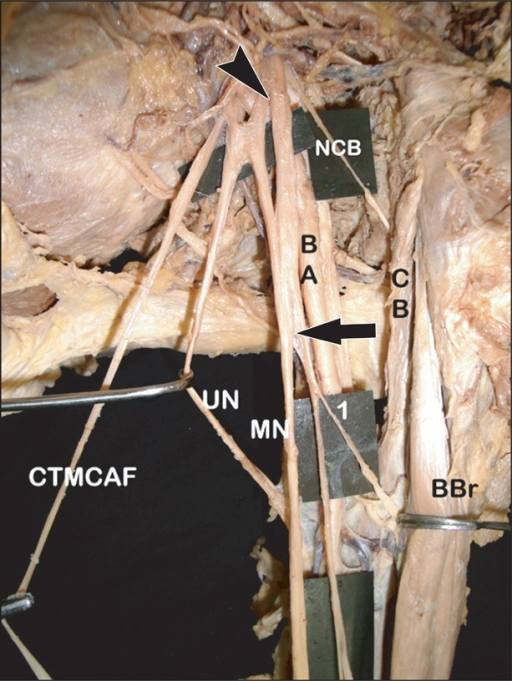 Photograph of the left axilla showing the absence of musculocutaneous nerve. BA, brachial artery; BBr, biceps brachii muscle; CB, coracobrachialis; CTMCAF, common trunk for medial cutaneous nerve of arm and forearm; MN, median nerve; NCB, nerve to coracobrachialis; UN, ulnar nerve; arrow, single long trunk from MN; arrowhead, additional lateral root of MN from lateral cord; 1, nerve to biceps brachii from the single long trunk of MN.