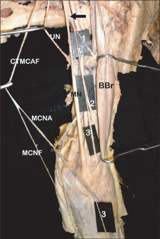 Photograph showing the variant branches of median nerve on the left side. BBr, biceps brachii; CTMCAF, common trunk for medial cutaneous nerve of arm and forearm from medial cord; MCNA, medial cutaneous nerve of arm; MCNF, medial cutaneous nerve of forearm; MN, median nerve; UN, ulnar nerve; arrow, single long trunk from MN; 1, nerve to biceps brachii; 2, branch to brachialis; 3, lateral cutaneous nerve of forearm.