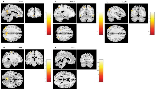 The impact of stress in Resting State Networks (RSNs) during task-induced deactivations.The images illustrate areas of increased deactivation in controls when compared to stressed participants in the default mode network (DMN) (A), dorsal attention network (DAN) (B), ventral attention network (VAN) (C), sensorimotor network (SMN) (D) and visual network (VN) (E), extracted by general linear model analysis and using two-sample t-tests, with results considered significant at a corrected for multiple comparisons p<0.05 threshold. Importantly, no areas of increased deactivation of these RSNs were found in stressed individuals when compared to controls.