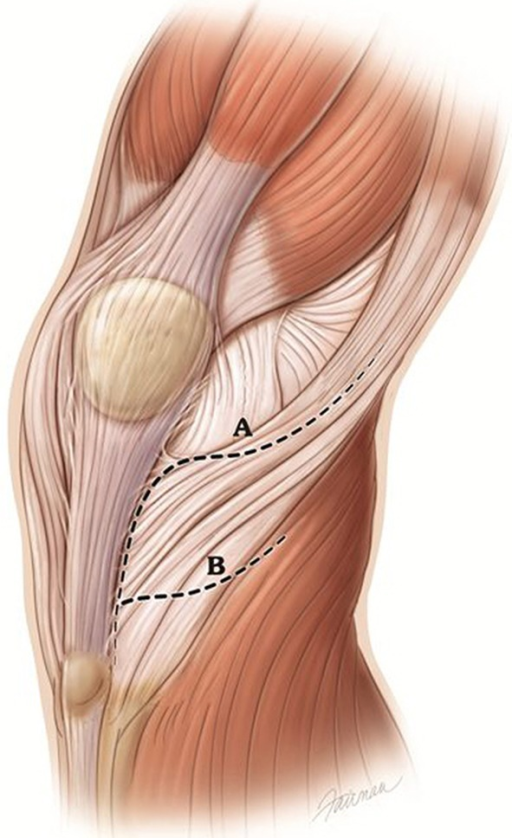 Illustration Showing It Band Tenotomy Line A For A Le Open I