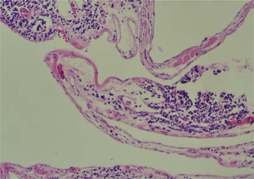 Histological findings showed that the cystic spaces are lined by flattened endothelial cells.