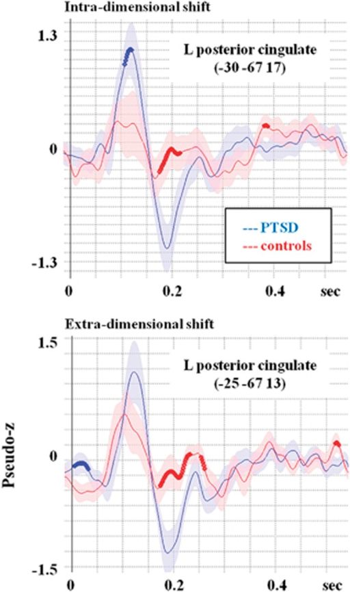 Reconstructed time courses from the left posterior cingulate, an area that was identified as active in this set-shifting task, although not typically seen on this kind of protocol. For intra-dimensional shifting, the PTSD group shows significantly greater activation in an early time window. For the extra-dimensional shifting, the between-groups difference is no longer significant due to the increased activation in this area in the military controls. Possibly, this increased activation reflects the increasing difficulty of the extra-dimensional shift, which is manifest as a stress-related increase in paralimbic regions for the controls. PTSD, posttraumatic stress disorder.