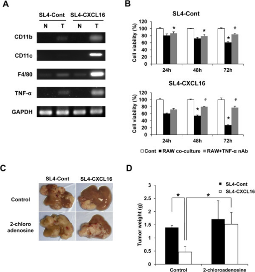 Effect of 2-chloroadenosine on CXCL16-mediated inhibition of liver metastasis by SL4-CXCL16 cells. (A) M1 macrophage markers and TNF-α were detected by RT-PCR. GAPDH was used as the normalization control. N, normal; T, tumor. (B) Cytotoxicity of macrophage-derived TNF-α and recovery by TNF-α neutralizing antibody in SL4 cells. Cells (5 × 104 cells) were seeded in 24-well plates and a TNF-α neutralizing antibody added (2.5 μg/ml). RAW 264.7 cells (5 × 104 cells) were seeded in migration chambers and co-cultured. Cells were removed from the chambers and their viability was measured by WST-8 assay. *P <0.05, compared with control. #P <0.05, compared with RAW co-culture. (C and D) Restoration of liver metastasis by CXCL16 expression in a macrophage depletion model. 2-Chloroadenosine was dissolved in saline and injected intraperitoneally (50 μg/100 μl) 24 h before tumor inoculation. *P <0.05. All experiments were repeated at least three times.
