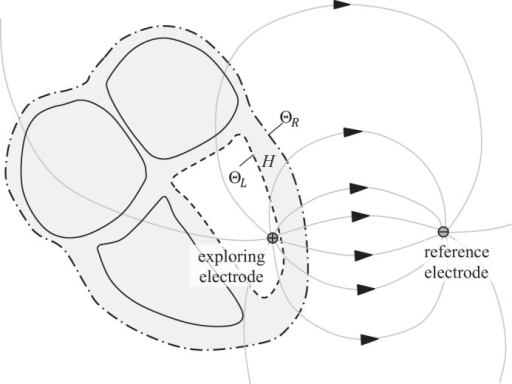 Conceptual Diagram Of The Lead Field For An Intracardia