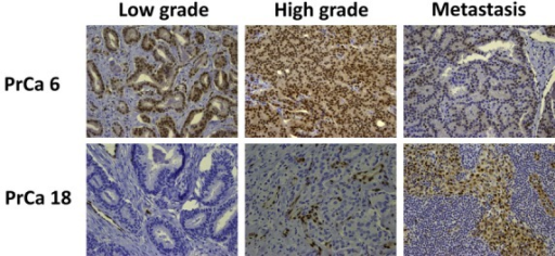 ERG expression. Immunohistochemical analysis for ERG in coincident foci from PrCa 6 and PrCa 18.