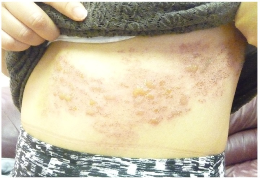 Bilateral Symmetrical Herpes Zoster in an Immunocompetent 15-Year-Old Adolescent Boy 2