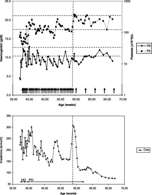 Clinical progress. Each thin arrow denotes a plasma exchange session (1 volume exchange with 5% albumin and 10 ml/kg virion inactivated plasma). Thick arrows denote eculizumab infusions. Vertical line represents the first eculizumab infusion. Horizontal dotted lines represent normal ranges for haemoglobin (bottom) and platelets (top) respectively. Time on haemodialysis (HD) and peritoneal dialysis (PD) represented by double arrowed lines.