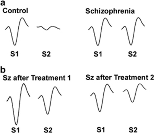 Representative P50 event-related potentials illustrating P50 gating deficits in schizophrenia. (a) In a healthy subject (left pair of traces), the brain inhibits its response to the second (S2) of a pair of repeated stimuli. A patient with schizophrenia (right pair of traces) is unable to inhibit response to this stimulus. (b) This effect can be normalized by treatments that increase response to the first stimulus (S1, left pair of traces) or decrease response to second stimulus (S2, right pair of traces). S1, first stimulus; S2, second stimulus; SZ, schizophrenia.