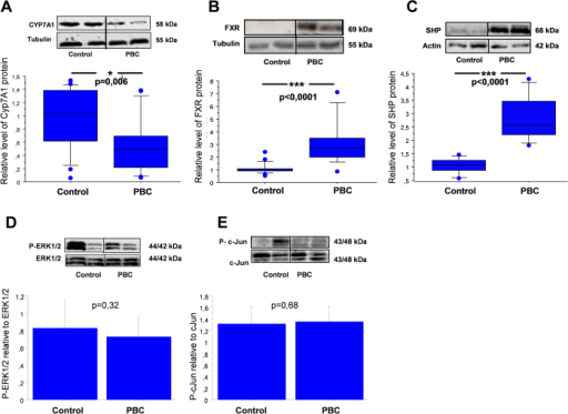 Expression of CYP7A1, FXR, SHP, phosphorylated ERK1/2 and phosphorylated c-Jun proteins in liver tissue of cirrhotic patients with PBC and controls.Changes in (A) CYP7A1, (B) FXR and (C) SHP levels were determined by densitometry analyses after normalization to α/β tubulin or β-actin as a control for loading. Data presented as the box-and-whisker plot with median value (middle line). Phosphorylated (D) P-ERK1/2 and (E) P-c-Jun bands were quantified by densitometry and normalized to the density of the total ERK1/2 and c-Jun, respectively. Bars indicate the mean ± SEM.