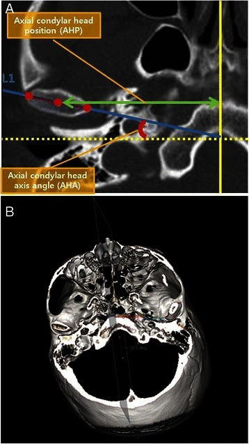 In the axial view, the slice that showed the greatest mediolateral dimension of the condylar head was selected. Axial condylar head long-axis line was drawn along the axis of the condylar head from the lateral pole to the medial pole (a, b)