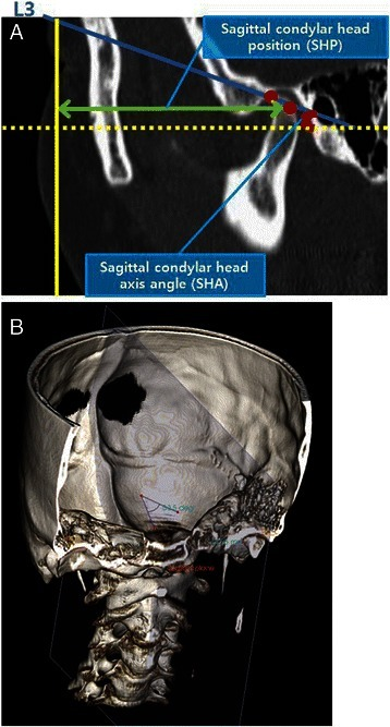 In the sagittal view, the slice that showed the greatest anteroposterior dimension of the condylar head was selected. Sagittal condylar head long-axis line, parallel to condyle neck inclination was drawn from the most superior point of condyle head (a, b)