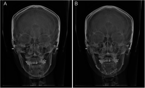 Radiographic findings of case 2: a pre-operation and b post-operation