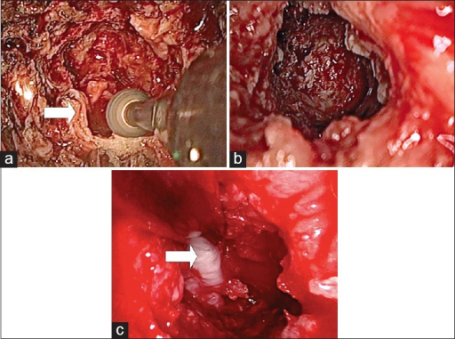 Intraoperative endoscopic views: (a) C1 anterior arch upper portion drilling; the arrow points out the residual lateral part of the arch (b) final endoscopic view after the odontoidectomy is completed showing the spinal cord dura just behind the drilled portion of the dens (c) the white arrow indicates the dura