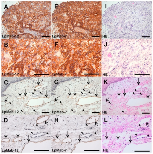 Immunohistochemical analysis of the oral cancer and heart tissue samples using LpMab-12 and LpMab-7.Serial sections of the tissues with oral cancer were incubated with LpMab-12 (A-D) or LpMab-7 (E-H), followed by the development with the EnVision+ kit and counterstaining with hematoxylin, or the HE staining (I-L). Arrows, lymphatic endothelial cells; arrowheads, vascular endothelial cells. Scale bars: 100 μm. LpMab-12 stains lymphatic vessels with high efficiency, similarly to LpMab-7.