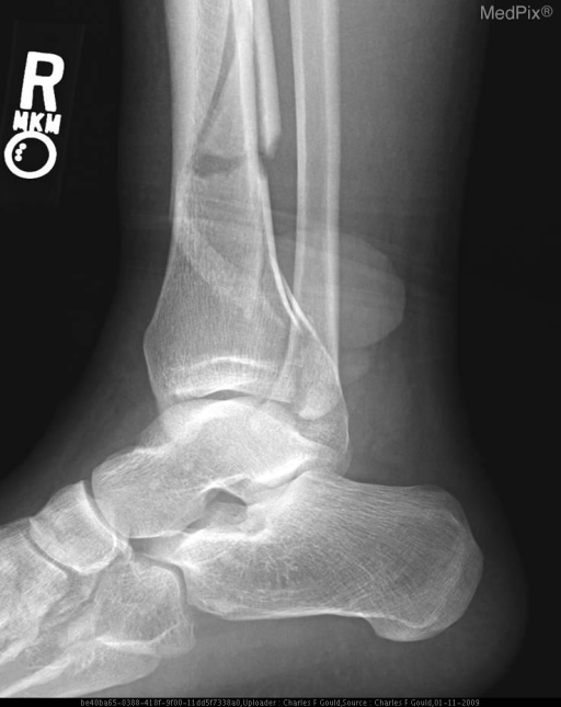 Displaced oblique fracture of the distal tibia with extraarticular extension and a well marginated ovoid density which measures 4.1 x 3.4 x 2.4 cm seen overlying the soft tissues near the distal tibial fracture.  Two similar smaller densities are seen just inferior to the larger density, consistent with fracture blisters.