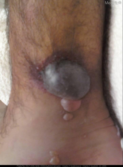 Gross images demonstrating a four fluid-filled bullae, consistent with a fracture blisters.