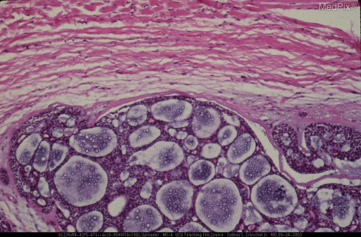 Higher magnification showing relatively uniform neoplastic cells.  Mitoses are very rare.