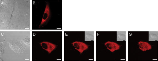Non-confocal DIC (A, C and inserts in E till G) and confocal images (B and D till G) of Vero cells after cytosolic microinjection of 158 kDa TRITC-dextran. Images (A) and (B) represent a microinjected cell 60 min after microinjection. Images (C) till (G) represent another microinjected cell after 10 s (D), 40 s (E), 5 min (F) and 10 min (G) incubation with 1% (w/v) TCHD.