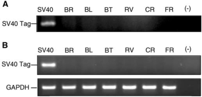 PCR (A) and RT–PCR (B) analyses of DNA and RNA extracted from HMCLs as described in Materials and Methods. Amplifications were carried out with PYV.for and PYV.rev for SV40 Tag primers. Positive control was SV40 Tag transduced rat pleural mesothelial cells (SV40). (−): negative control. GAPDH amplification (165 bp) was used as quantitative RT–PCR control.