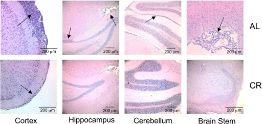 Influence of CR on VM-M3/Fluc tumour cell invasion to the contralateral hemisphereVM-M3/Fluc tumour fragments were implanted as described in Figure 1. Histological analysis (H&E) was used to validate the presence of tumour cells under AL (top panels) and CR (bottom panels) in cerebral cortex (200×), hippocampus (100×), cerebellum (100×) and brain stem (200×). Arrows indicate the presence of tumour cells. At least three samples were examined per group.