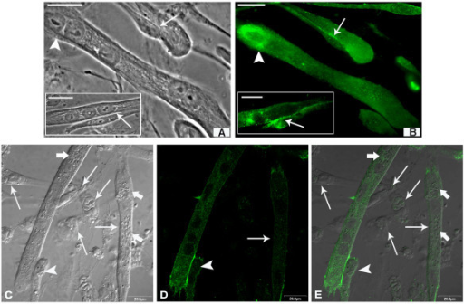 Cadherin profile in differentiated cultures after 24 h of T. gondii interaction. (A and inset) Mature (arrowhead) and young myotubes in fusion process with myoblasts (arrows) can be observed by phase contrast microscopy. (B and inset) By fluorescence microscopy, cadherin (in green) appears distributed throughout the myotubes, being more concentrated at the cell membrane during adhesion, while mature myotubes alone show more intense labeling at the extremities. (C) Interferential microscopy shows the adhesion of uninfected myoblasts (arrowhead) with a mature infected myotube (thick arrows). (D) Confocal microscopy analysis shows that infected myoblasts do not reveal cadherin labeling and more infected myotubes present weaker cadherin labeling (arrow). Observe that despite the weak labeling, in infected myotubes cadherin molecules appear to migrate to the point of contact with uninfected myoblasts (arrowhead). (E) Merge. Bars, 20 μm
