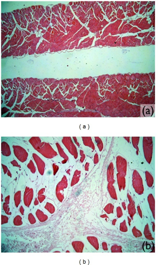 Microscopic images of muscle tissue without significant alterations. (a) Diaphragm (magnified 4x). (b) Rear right foot (magnified 10x).
