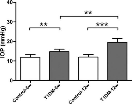 Intraocular pressure in streptozotocin-induced diabetic and control mice. The 6- and 12-week diabetic mice had a significantly higher intraocular pressure (IOP) than the age-matched control mice. Compared with 6-week diabetic mice, 12-week diabetic mice also had significantly increased IOP (n=8/group, ** indicates p<0.01, *** indicates p<0.001).