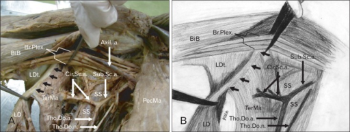 Photograph (A) and schematic drawing (B) (anterior axillary approach) showing the gross anatomy of the variant insertion of the teres major (A). Axil.a., axillary artery; BiB, biceps barchii; Br.Plex., brachial plexus; Cir.Sc.a., circumflex scapular artery; LD, latissimus dorsi; LDt, latissimus dorsi tendon; PecMa, pectoralis major; SS, subscapularis muscle; Sub.Sc.a., subscapular artery; TerMa, teres major; Tho.Do.a., thoracodorsal artery; Tho.Do.n., thoracodorsal nerve; black arrows, the connection area between TerMa muscle fibers and the LD tendon. Note: No terminal tendon of TerMa was observed.
