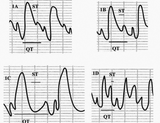 The effect of bilberry on doxorubicin (DOX)-induced changes in ECG tracing. Control ECG (A) shows control heart rate, ST segment and interval, and QT interval. Bilberry ECG tracing (B) shows control heart rate, ST segment and interval, and QT interval. DOX-treated group (C) shows bradycardia, depressed long ST segment, and long QT interval. DOX+bilberry group (D) shows nearly normalized heart rate, ST segment and QT interval.