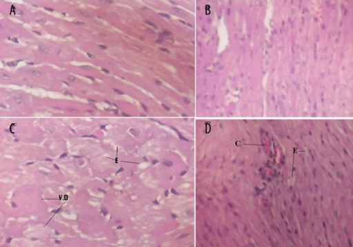 The effect of bilberry on doxorubicin (DOX)-induced alterations in the histology of cardiac muscle. Histopathological effects of cardiac tissues from control and bilberry groups show normal histological pattern (A and B, respectively). Cardiac tissues from doxorubicin (DOX)-treated group show severe vacuolar degeneration (VD) and interstitial edema (E) (C). Cardiac tissues from bilberry+DOX treated rats show some congestion (C) and minimal interstitial edema (E) with no fibrosed bands (D) (H & E ×125).