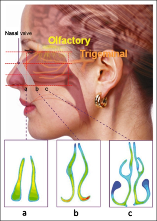 The Complex Anatomy Of The Nasal Airways Showing The Ap Open I