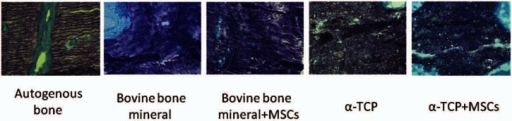 Toluidine blue staining of representative sagittal sections of alveolar osseous defects at 8 weeks after surgery in each group. Woven bone is displayed in all samples (from left to right; Groups 1, 2, 3, 4, and 5, respectively, under 400× magnification).TCP: tricalcium phosphate; MSC: mesenchymal stem cell.