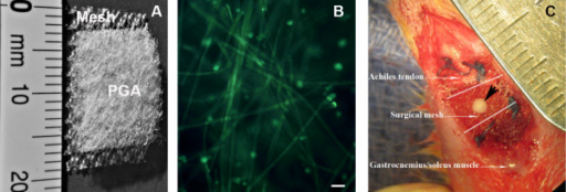 Design and application of MSC-loaded surgical mesh. A: Composition of MSC-loading mesh. B: Distribution of MSCs in the PGA-based scaffold. MSCs (green) were labeled with fluorescent dye SYTO®10. PGA fibers also showed green in auto-fluorescence (bar = 50 μm). C: The MSC-loaded mesh was used to repair the 3-mm defect (between the dot lines) created at the junction of Achilles tendon and gastrocnemius/soleus. The portion of scaffold/MSCs was inserted into the defect and surgical mesh was sutured to the surface of muscle and tendon (black arrowhead indicates a knot of surgical suture used to tie the scaffold and surgical mesh together. The suture was melted after autoclave).