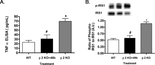Tumor necrosis factor α and insulin-receptor substrate 1Ser307 phosphorylation in control, β2-adrenergic receptor knockout mice+49b and β2-adrenergic receptor knockout mice. A: Tumor necrosis factor α (TNF-α) levels are returned to near control levels in β2-adrenergic receptor knockout (KO) mice treated with Compound 49b. B: Similar results for the phosphorylation of serine 307 on insulin-receptor substrate 1 (IRS-1). *p<0.05 versus wild-type (WT); #p<0.05 versus β2-adrenergic receptor KO mice. n = 5 for all groups. Data are mean ± standard error of the mean (SEM).
