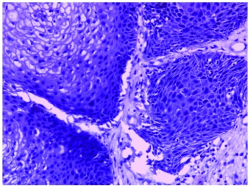 Representative image of sinonasal inverted papilloma with atypical hyperplasia. The section shows the transitional cell growth of papillary epithelial cells. The cells have a disordered arrangement and the nuclei are of different sizes. Atypic epithelial cells and severe dysplasia are evident (hematoxylin and eosin staining; magnification, ×100).