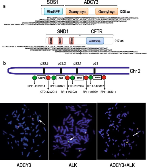 Genomic complexity ofEML4-ALKco-occurring fusion genes. (a) Detection by transcriptome sequencing of SOS1-ADCY3 and SND1-CFTR in the H3122 and H2228 EML4-ALK-positive cell-lines, respectively. Schematic representation of the fusion transcripts and some of the transcriptome sequencing reads spanning the fusion point. (b) Top: schematic representation of part of chromosome 2 illustrating the location of ADCY3, ALK, SOS1, and EML4 as well as the relative location of the FISH probes. Bottom, from left to right: ADCY3 break-apart assay, ALK break-apart assay, and simultaneous application of ADCY3 and ALK break-apart assays on metaphase chromosomes of H3122 cells.