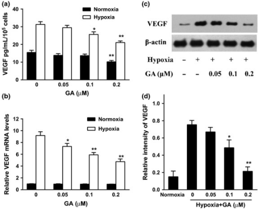 Effect of gambogic acid (GA) on the secretion and expression of vascular endothelial growth factor (VEGF) in U266 cells under normoxia and hypoxia. (a) U266 cells were treated by GA (0, 0.05, 0.1, and 0.2 μM) for 8 h under normoxia and hypoxia. VEGF secretion was detected by ELISA assay. Bars were the mean ± SD (n = 3). The comparisons were made relative to untreated controls, and the different levels of significance were indicated as *P < 0.05 and **P < 0.01. (b) Effect of GA on VEGF mRNA level under normoxia and hypoxia. U266 cells were treated with various concentrations of GA (0, 0.05, 0.1, and 0.2 μM) for 4 h under normoxic and hypoxic conditions. VEGF mRNA was detected by real-time polymerase chain reaction (PCR) and analyzed by the ΔΔCt method. Bars were shown as mean ± SD (n = 3) and represent VEGF/β-actin fold relative to the untreated group. The different levels of significance were indicated as *P < 0.05 and **P < 0.01. (c) Effect of GA on VEGF protein expression under normoxia and hypoxia. U266 cells were treated with various concentrations of GA (0, 0.05, 0.1, and 0.2 μM) for 4 h under normoxic and hypoxic conditions. VEGF protein expression was analyzed by western blots. (d) For quantity of (c), images were analyzed using Image J. Bars are the mean ± SD (n = 3). The comparisons were made relative to hypoxia alone group, and the different levels of significance were indicated as *P < 0.05 and **P < 0.01.