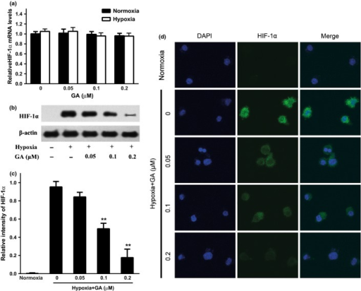 Gambogic acid (GA) attenuates the hypoxia-induced HIF-1α activation in U266 cells. (a) Effect of GA on hypoxia-inducible factor-1α (HIF-1α) mRNA level under normoxia and hypoxia. U266 cells were treated with various concentrations of GA (0, 0.05, 0.1, and 0.2 μM) for 4 h under normoxia and hypoxia, and HIF-1α mRNA level was detected by real-time PCR and analyzed by the ΔΔCt method. Bars are shown as mean ± SD (n = 3) and represent HIF-1α/β-actin fold relative to the untreated group. (b) Effect of GA on HIF-1α protein expression under normoxia and hypoxia. U266 cells were treated with various concentrations of GA (0, 0.05, 0.1, and 0.2 μM) for 4 h under normoxia and hypoxia. HIF-1α protein expression was analyzed by western blots. (c) For quantity of (b), images were analyzed using Image J. Bars are the mean ± SD (n = 3). The comparisons were made relative to the hypoxia alone group, and the different levels of significance was indicated as **P < 0.01. (d) Immunofluorescent staining analysis of the effect of GA on intracellular HIF-1α expression in normoxic and hypoxic U266 cells. Cells were treated with various concentrations of GA (0, 0.05, 0.1, and 0.2 μM) for 4 h under normoxia and hypoxia. Green color was detected for HIF-1α, while nuclei were counterstained with blue color using DAPI (4′6′-diamidino-2-phenylindole dihydrochloride).