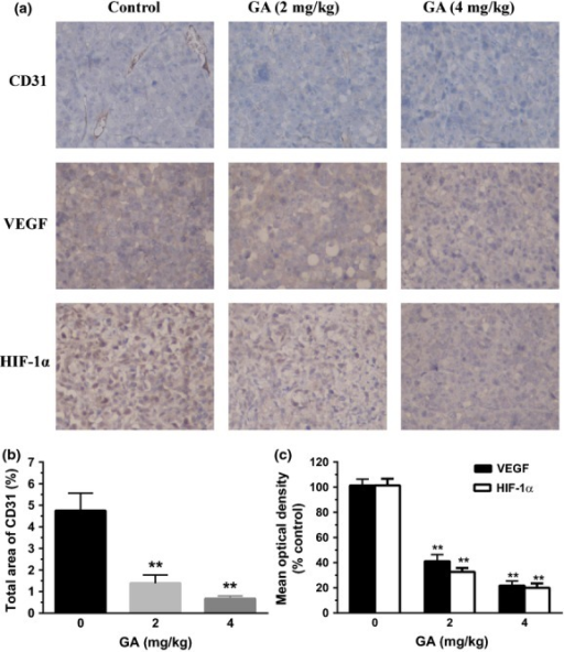 Gambogic acid (GA) inhibited tumor angiogenesis in U266 xenograft mouse model. (a) Immunohistochemistry was performed in tumor sections with antibodies of hypoxia-inducible factor-1α (HIF-1α), vascular endothelial growth factor (VEGF) and CD31. The result showed a remarkable decrease in expression of HIF-1α, VEGF and CD31 in the treated groups with 2 and 4 mg/kg GA compared with untreated control groups. (b) To identify the tumor angiogenesis, the stained area of CD31 in 10 fields was quantified by using Image Pro Plus. Bars are the mean ± SD (n = 10). The comparisons were made relative to untreated controls, and the different levels of significance was indicated as **P < 0.01. (c) The images were quantified using Image Pro Plus and mean optical densities (of control) of VEGF and HIF-1α were shown. Bars are the mean ± SD (n = 10). The comparisons were made relative to untreated controls, and the different levels of significance was indicated as **P < 0.01.