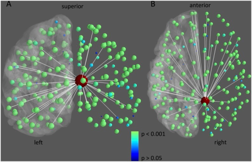 Differences in resting-state flexibility of connections from the cPCC between memory preserved and disturbed patients.The 5% largest differences in connections between memory preserved and memory disturbed LTLE patients (i.e. preserved—disturbed) are depicted in white. Furthermore, nodal group differences in flexibility with the cPCC (large node in red) are depicted in color and size, with smaller blue nodes indicating no significant difference (P > 0.05), and bigger green nodes referring to significant decreases in resting-state flexibility in the memory disturbed patients (P < 0.001). For reference, the left cortical surface is displayed in grey.