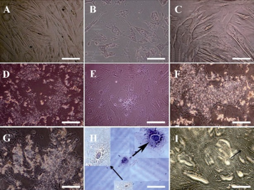 Hepatocyte-like cells morphological features. A) Serum free cells show no conspicuous growth alteration, B) short appendage flattened in cells exposed to RA as a contrast with C) not exposed cells after two weeks, D) after three weeks, polyhedral shapes were detected in exposed cells despite of E) not exposed cells, F) at the end of week's four, more visible granules appeared in cells receiving RA than G) not receiving cells, H) morphology of two hexagonal HLCs stained with hematoxylin followed by I) further bile canaliculi-like (arrow) development in exposed cells. All observed with invert microscope. Scale bars for A, B and C=10 μm; for D, E, F, and G=100 μm; for H=20 μm; and for I=50 μm.