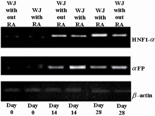 Expression pattern of hepatocyte-like cells specific markers. It is clear from the figure that the highest expression level for αFP was at day 14, but for HNF1-α at day 28. RA had the profound effects on expression levels of the two discussed markers. We can also see that the rates for cells at day 0 were not significant. WJ= Wharton's jelly-mesenchymal stem cells; αFP=alpha-fetoprotein; and HNF-1α=hepatocyte nuclear factor-1α.