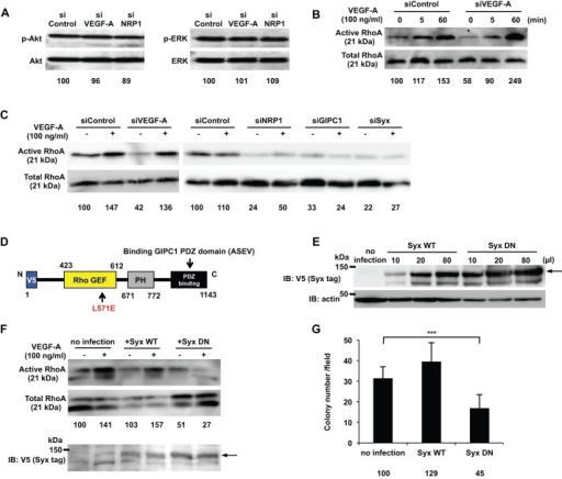Syx was identified as a downstream molecule of VEGF-A/NRP1 signaling and a RhoA activator that promoted DJM-1 cell proliferation. (A) The western blot for phospho-Akt and phospho-ERK of DJM-1 cell lysates. DJM-1 cells were treated with siRNAs (siControl, siVEGF-A or siNRP1, 20 nM respectively) under anchorage-independent conditions. The same proteins were re-immunoblotted with an anti-Akt or -ERK antibody to normalize the amounts of each phospho-protein. (B,C) The RhoA activity of DJM-1 cells under anchorage-independent conditions. (B) DJM-1 cells were treated with siControl or siVEGF-A and stimulated with (+) or without (−) VEGF-A (100 ng/ml) at the indicated time points. The siVEGF-A treatment (asterisk) decreased RhoA activity below that with the siControl treatment. (C) DJM-1 cells were treated with siVEGF-A, siNRP1, siGIPC1, and siSyx in the presence of VEGF-A (+) or its absence (−). (D) Structure of dominant negative Syx (Syx DN). An amino acid substitution of Leu 571 Glu in Syx DN prevented RhoA from interacting with the mutant. The V5 epitope was tagged at the N-terminus of Syx DN. (E) Lentiviral overexpression of Syx WT or Syx DN in DJM-1 cells. Virus infection amounts were adjusted for equal expression levels of Syx WT or Syx DN in the RhoA activity assay (F) and in the colony formation assay (G). Arrow shows Syx WT or Syx DN. (F) The RhoA activity assay for Syx DN-overexpressing DJM-1 cells under anchorage-independent conditions in the presence of VEGF-A (100 ng/ml) (+) or its absence (−). A 10% input was subsequently immunoblotted with an anti-V5 antibody to normalize the amounts of each protein. The arrow shows Syx WT or Syx DN. (G) The colony formation assay for DJM-1 cells that overexpressed Syx WT or Syx DN. These data represent the means±s.d. Percentages from each mean relative to the siControl (A), siControl (−)(B,C) or no infection (F,G) are shown below the graph. ***P<0.001.