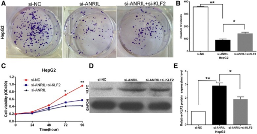 ANRIL negatively regulates expression of KLF2 by rescue assays. a, b Colony-forming assays were used to determine the cell viability for HepG2 cells transfected with si-NC and si-ANRIL and co-transfected with siANRIL and si-KLF2. Values represent the mean ± s.d. from three independent experiments. c MTT assays were used to determine the cell viability for HepG2 cells transfected with si-NC and si-ANRIL and co-transfected with siANRIL and si-KLF2. Values represent the mean ± s.d. from three independent experiments. d, e The levels of KLF2 protein levels were determined by Western blotting when HepG2 cells transfected with si-NC and si-ANRIL and co-transfected with siANRIL and si-KLF2. *P < 0.05, **P < 0.01
